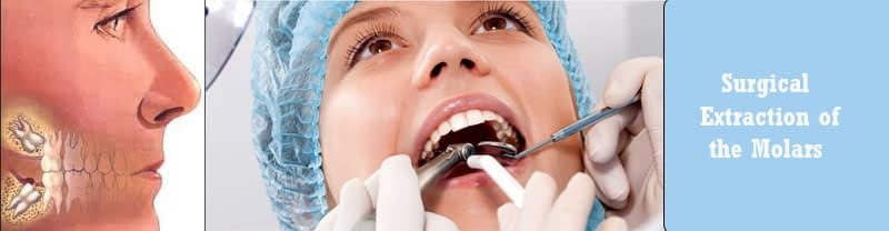 Surgical Extraction of the Molars